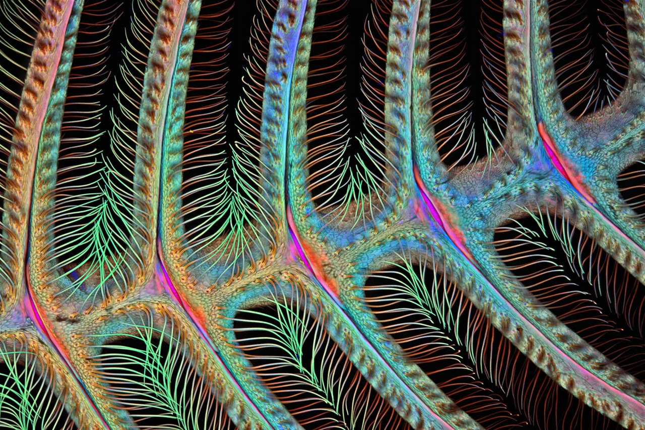 Photographing the Microscopic Winners of Nikon Small World 2015_05