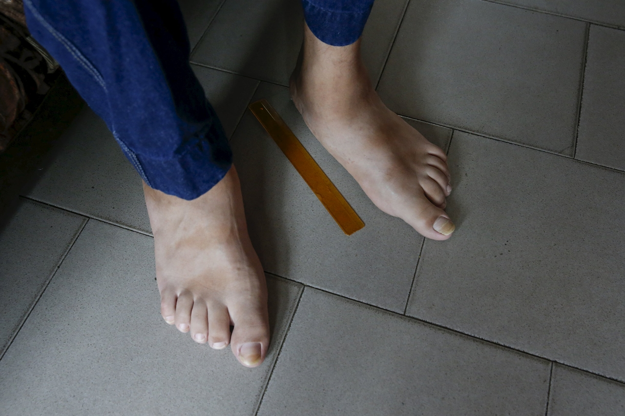 World's Biggest Feet 09