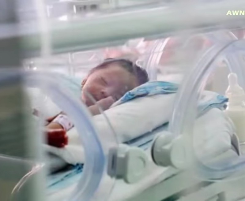 Just born, the baby has experienced a hail of crushing blows real life, but was saved by a miracle 04
